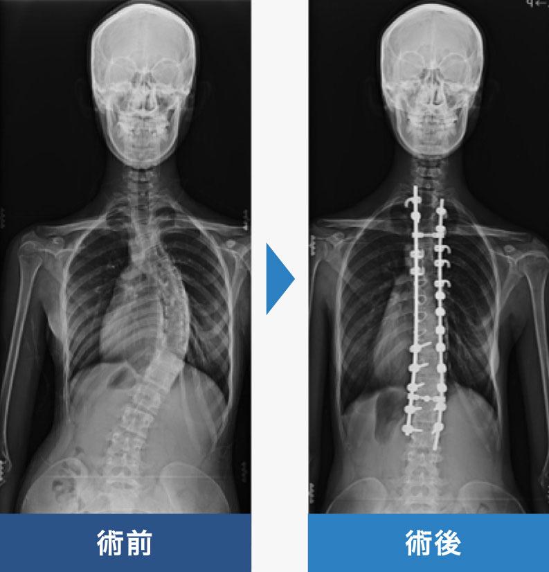 """せぼねの曲がり""""外科 群馬脊椎脊髄病センター 首の痛み・手足のしびれ ..."""